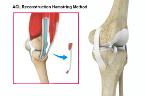 Acl Reconstruction Using Hamstring Tendon