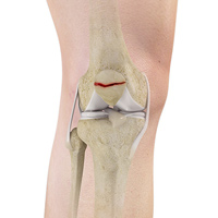 Factures of the Patella