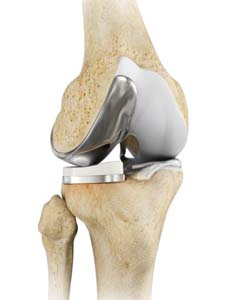Uni Knee Replacement